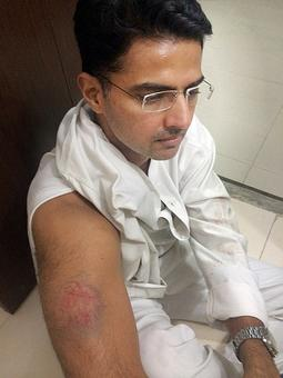 Sachin Pilot injured in police lathicharge
