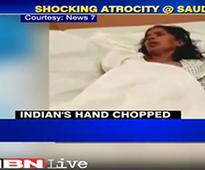Indian maid's hand chopped off: Given terrible Saudi ...
