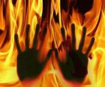 11-year-old girl burnt mysteriously after cop's thrashing, dies ...