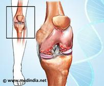 Fifty-Nine-Year-Od Woman Cured of Osteoarthritis With Gold Knee Implant